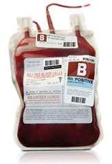 Donorinio kraujo saugumas ir užkrečiamųjų ligų diagnostikos evoliucija